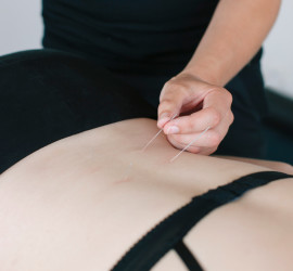 Acupuncture at Central Lakes Physio Wanaka