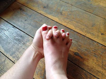 Bunion Prevention - Keeping You On Your Toes!