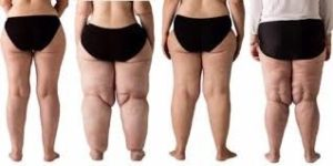 Women with Lipoedema